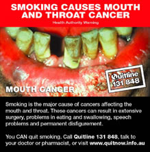 SMOKING CAUSES MOUSE AND THROAT CANCER