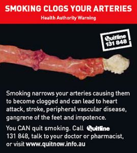 SMOKING CLOGS YOUR ARTERIES
