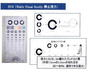 SVA(静止視力検査)