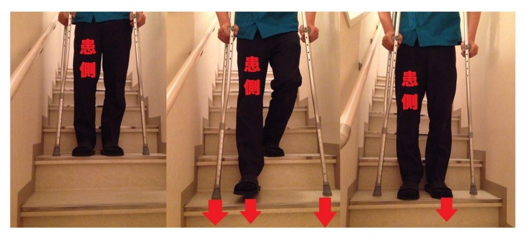 松葉杖での階段の下り方