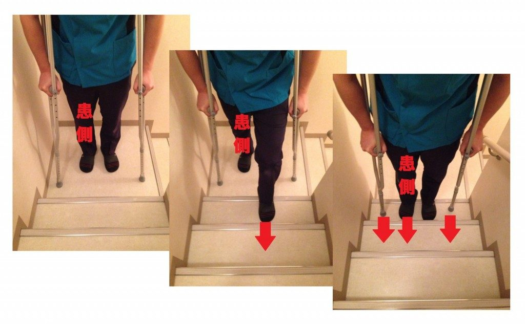 松葉杖での階段の上り方